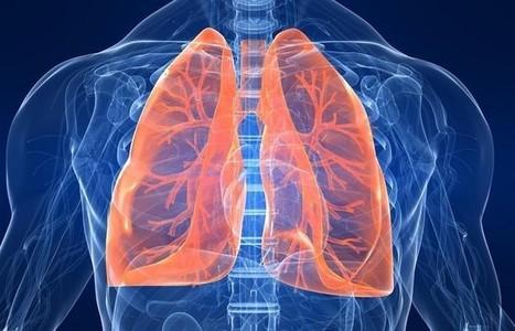 Aprendiendo sobre cáncer de pulmón. | Dr. Josep Morera Prat - Neumólogo | Scoop.it
