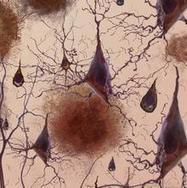 Alzheimer's disease: how could stem cells help? | Treball de recerca | Scoop.it