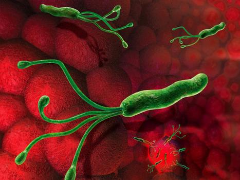 Microalgas contra gastritis y úlceras | GESTIÓN ECOLÓGICAMENTE RACIONAL DE LA BIOTECNOLOGÍA | Scoop.it