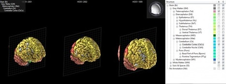 The 3D atlas of the human brain | Time to Learn | Scoop.it