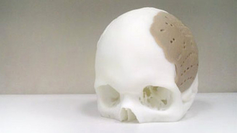 New Thermoplastic Makes 3-D Printed Skull Implants a Reality - Wired | Technological advancements within the IT industry that will revolutionize the medical field over the next 5-10 years. | Scoop.it