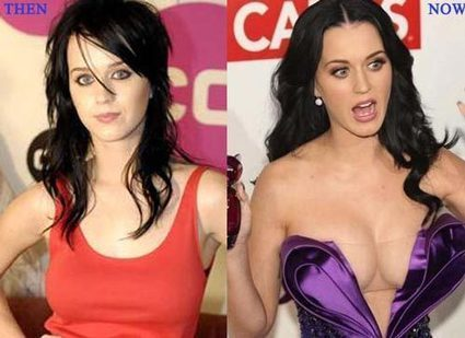 Katy Perry Plastic Surgery Before & After Photos | Celebrity Plastic Surgery | Scoop.it