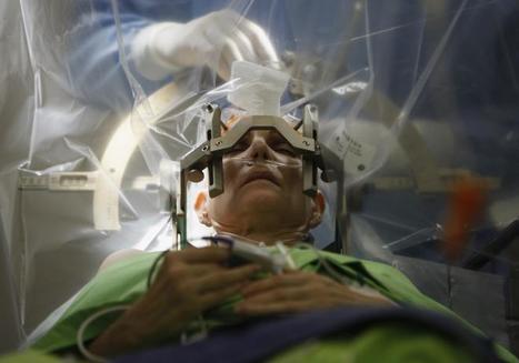 Brain Surgery In Prime Time: National Geographic To Showcase Deep Brain Stimulation Procedure | Parkinson's &  ALS Disease | Scoop.it