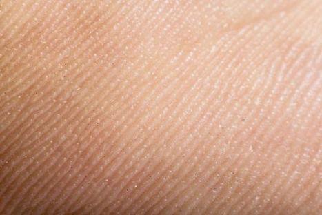 5 señales de la piel que indican problemas en el cuerpo - El Ciudadano (Chile) | Piel | Scoop.it