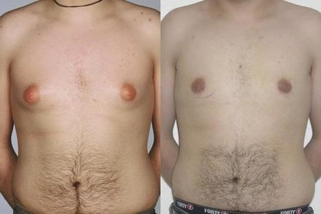 Causes of Gynaecomastia | Diseases and Conditions | Scoop.it
