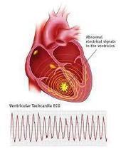 Cara Alami Menyembuhkan Jantung Tachycardia | Obat Ace Maxs | healt | Scoop.it
