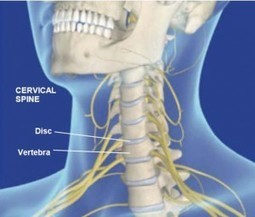 Your Fibromyalgia May Be a Spine Disorder - Our Arthritis Community | Our-arthritis.com Community | Scoop.it