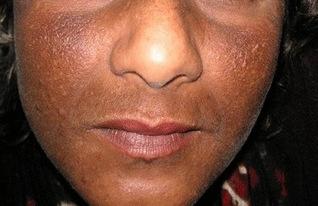 Risques de la dépigmentation volontaire | Dermatologue Esthétique | Depigmentation en Afrique de l'ouest | Scoop.it