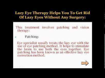 Lazy Eye Therapy­ Cure lazy eye without any surgery | Bioscience | Scoop.it