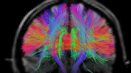 El mapa más detallado del cerebro humano - BBC Mundo - Noticias | Salud Publica | Scoop.it