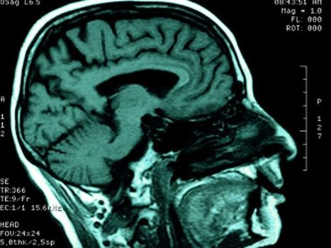 Can Brain 'Pacemaker' Improve Lives of Head Trauma Victims? | California Brain Injury Attorney News | Scoop.it