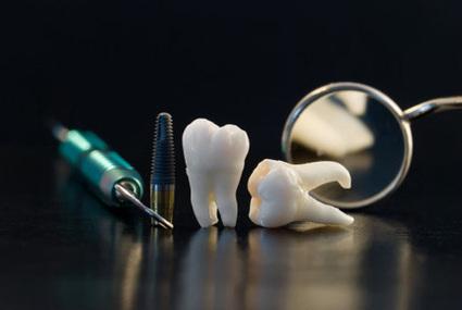 Matsubara Koyama hablará en Valencia sobre restauraciones dentales | Diario El Carabobeño | Crooke & Laguna | Scoop.it
