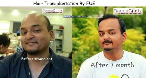 Hair Transplant | DermaClinix - The Complete Skin & Hair Solution Center | Scoop.it