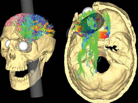 How Phineas Gage survived a horrific brain injury to become one of the... | Medical Museums Worldwide Discovery | Scoop.it