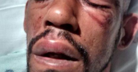 New Jersey Lawsuit: Seizures prompted police beatings | Epilepsy Foundation ScoopIt | Scoop.it