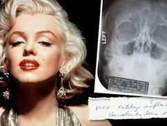 Did Marilyn have surgery? Medical records and X-RAYS under the ... | Beauty | Scoop.it
