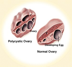 Meal timing can significantly improve fertility in women with polycystic ovaries | womens health | Scoop.it