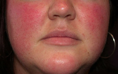 8 Essential Oils for Treating Symptoms of Rosacea   Home Remedies   Scoop.it