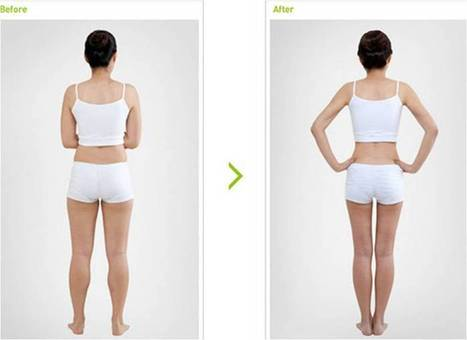 Calf Reduction Thailand - Urban Beauty Thailand | Affordable Liposuction bangkok | Scoop.it