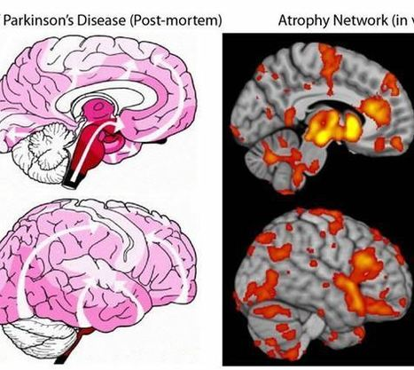 Progression of Parkinson's Disease Within the Brain Mapped in New Study | Social Neuroscience Advances | Scoop.it