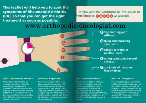 Rheumatoid Arthritis Treatment Bangalore | Juvenile Arthritis India | Orthopedic oncology Surgery in bangalore | Scoop.it