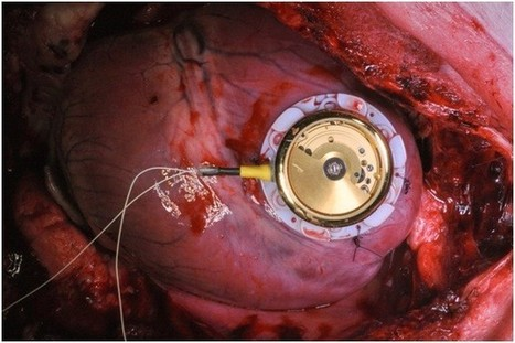 A batteryless cardiac pacemaker based on self-winding wristwatch | Medicine in Pictures | Scoop.it
