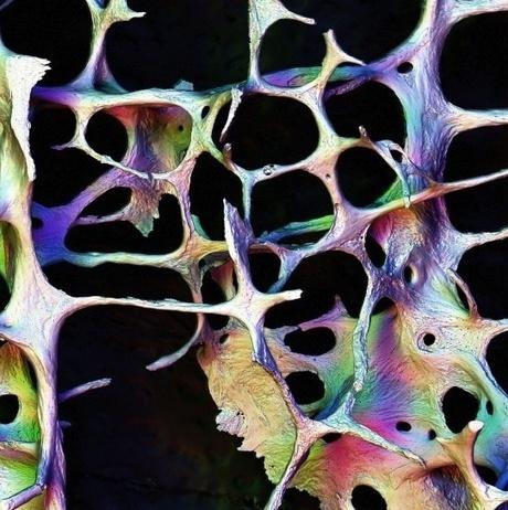 Ostéoporose : Vitamine D et calcium ne sont d'aucune utilité dans la prévention des fractures (US) | 321654 | Scoop.it
