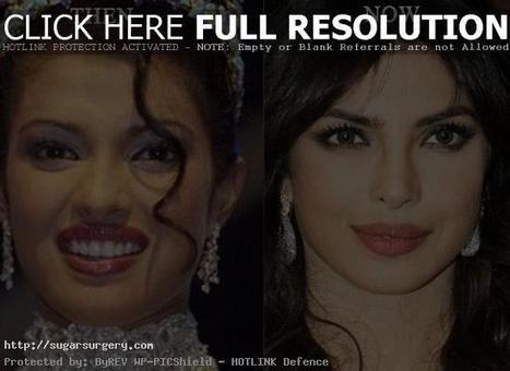 Priyanka Chopra Plastic Surgery Before and After Photo | Health & Beauty | Scoop.it