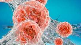 NHS cancer testing service 'at breaking point' - BBC News | Micro economics | Scoop.it