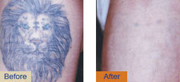 Gold Coast Laser Tattoo Removal | Surgery Free Cosmetic Solution | Cosmetic Dermatologists Transform Ordinary Looks Into Unparalleled Glamour | Scoop.it