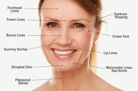 Fine lines Around the Mouth: Botox for Fine lines and Wrinkles   HEALTH   Scoop.it