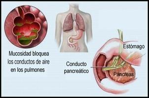 Sintomas de una Fibrosis Quistica - TuSaludesvida   Tu Zona Lumbar   Scoop.it