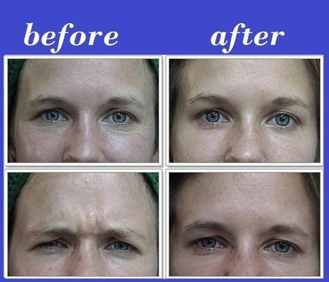 Botox Thailand | Bangkok Aesthetic Surgery Center | Best Plastic Surgery Thailand | Scoop.it
