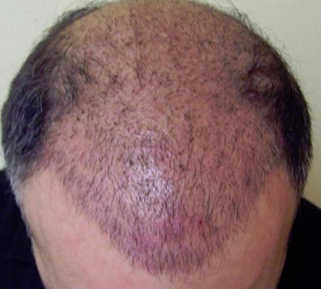 Contemporary Treatment for Hair Transplantation   Royal Cosmetic Surgery   Scoop.it