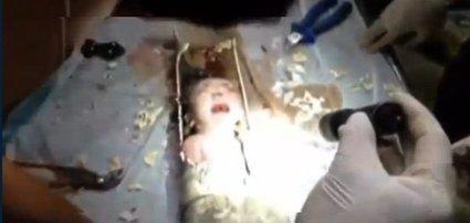 Rescatan vivo a un recién nacido que había sido arrojado al inodoro | Construcción de la ciudadanía. | Scoop.it