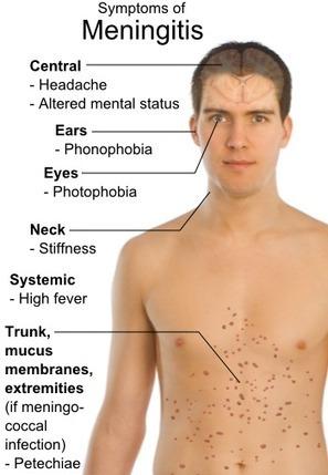 Nationwide Meningitis Outbreak Claiming More Lives   Arizona Personal Injury Attorneys   Scoop.it
