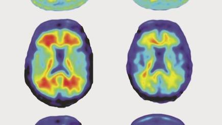 Alzheimer: Neue Forschung sorgt für Hoffnung | #Research | 21st Century Innovative Technologies and Developments as also discoveries, curiosity ( insolite)... | Scoop.it