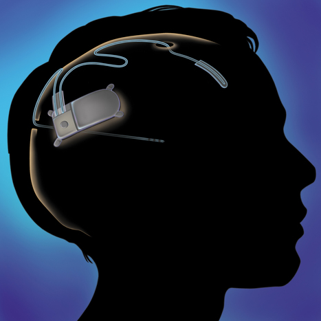 New Medical Device Treats Epilepsy With A Well-Timed Zap | Health care | Scoop.it