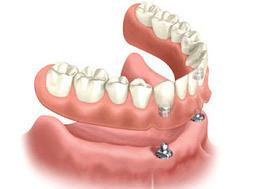 Single Missing Tooth Solution At Dental Clinic Delhi   Dental Clinic Delhi   Scoop.it