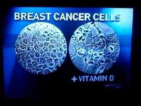 Vitamin D holds promise in battling a deadly breast cancer | Breast Cancer News | Scoop.it