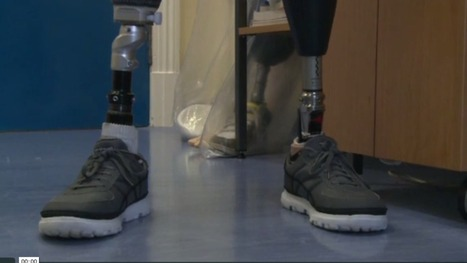 Former soldier gets world's most advanced bionic knee - ITV News | Aspect1 | Scoop.it