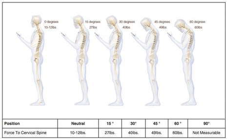 Staring At Your Phone Is Bad For The Spine | 16s3d: Bestioles, opinions & pétitions | Scoop.it