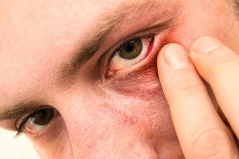 5 Ways to get rid of a stye | Diseases and Conditions | Scoop.it