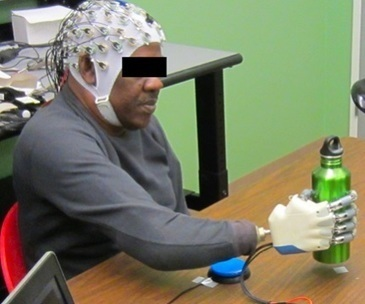 Non-Invasive Brain-Machine Interface to Control Prosthetic Hand | Medical Engineering = MEDINEERING | Scoop.it