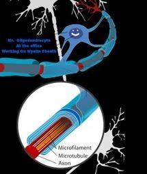 Is Multiple Sclerosis (MS) Caused By Brains Own Repair Mechanism? | Overcoming Multiple Sclerosis | Scoop.it