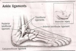 Anatomy of an Ankle Sprain   eFootAndAnkle   eFootandankle   Scoop.it