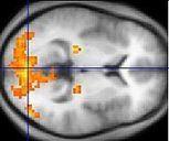 Mirror neuron | EMDR | Scoop.it