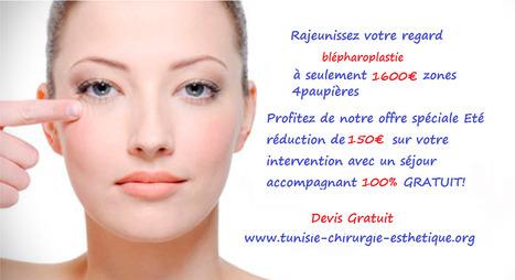 Blépharoplastie en Tunisie à 1600€ pour 4 paupières : Séjour all-inclusive | chirurgie silhouette en Tunisie | Scoop.it