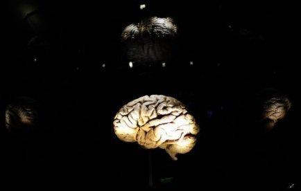 Les structures cérébrales détermineraient si on est de droite ou de gauche | Mais n'importe quoi ! | Scoop.it