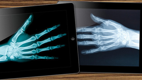 X-rays and iPads: The network healthcare evolution | Ars Technica | Healthcare Innovation | Scoop.it